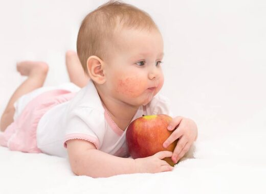 tratar la piel atopica del bebe