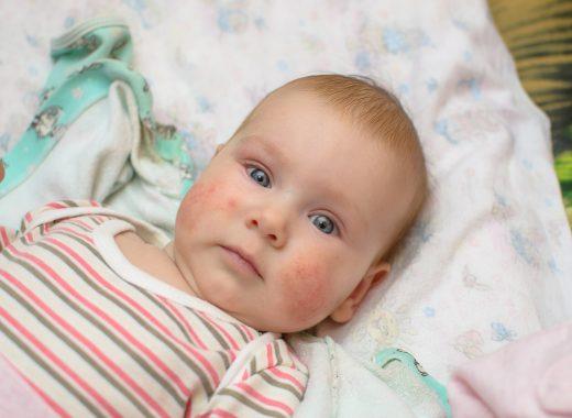 sudamina del bebé
