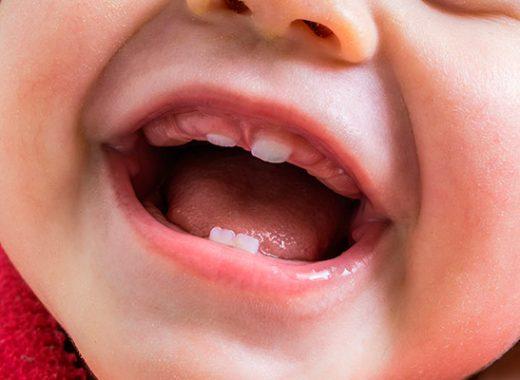 aliviar el dolor de dientes bebé