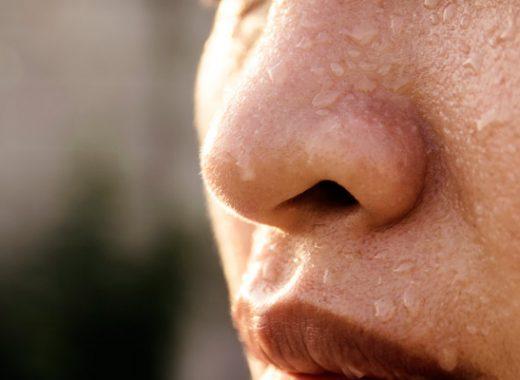 Qué es la hiperhidrosis y cómo tratarla