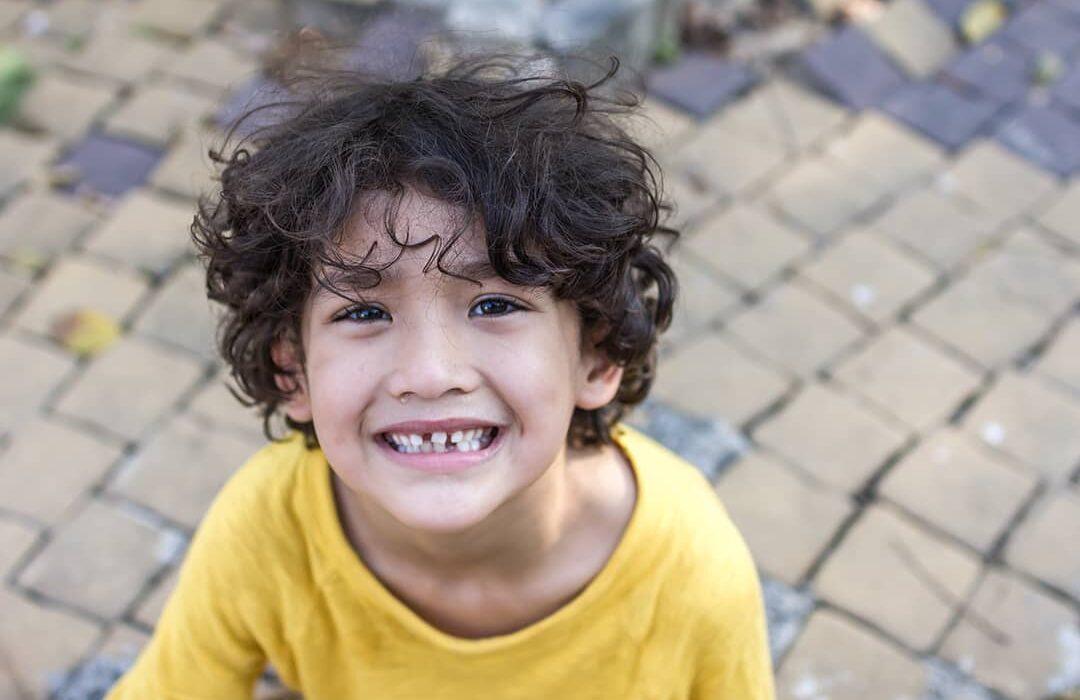 nino con el diente partido